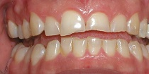 Before Cosmetic Dentistry in Hayward, CA 94544