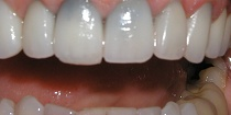 Before Cosmetic Teeth Makeover - Hayward, CA 94544