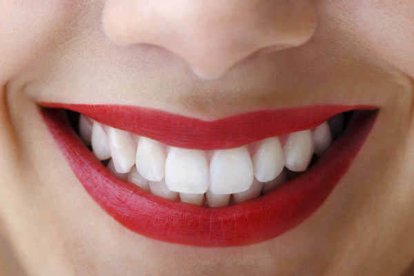 Cosmetic Dentistry-Smiling Straight White Teeth with Bright Red Lips