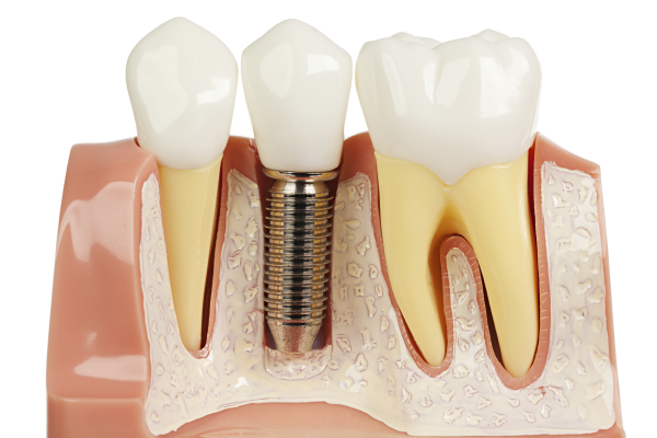 Plastic Model of Dental Implant Placement