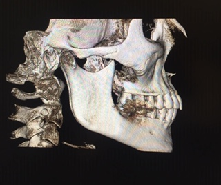 houston dentist dental x-ray