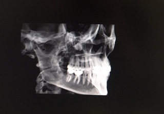 houston dentist dental xrays