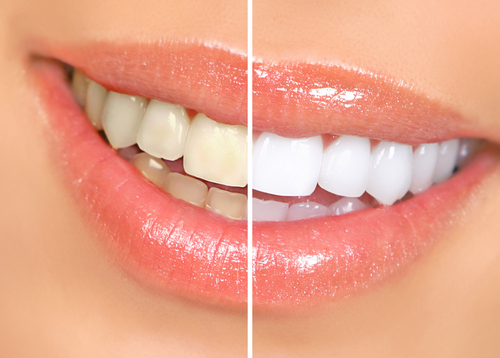 zoom teeth whitening houston
