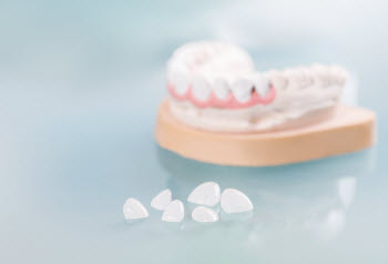 Dental Veneers in Thornton, CO | Denver Dental Veneers