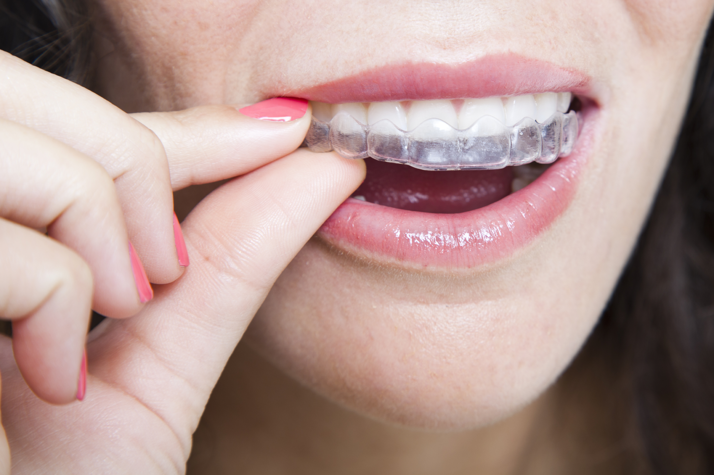 Image of Invisalign Invisible Braces in Denver & Thornton, CO