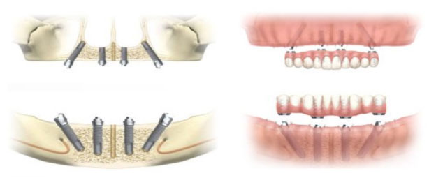 Dental Implants in Memorial Houston