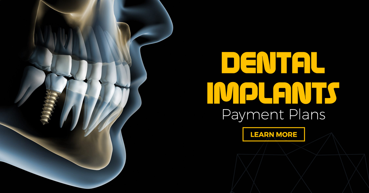 DENATL IMPLANTS PAYMENT PLANS