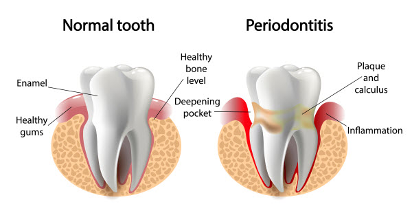 about periodontal gum disease