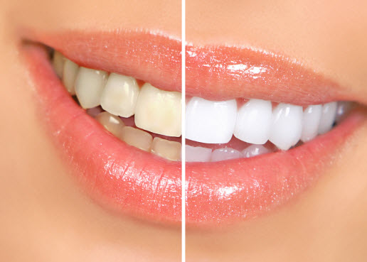 Teeth Whitening in Paso Robles