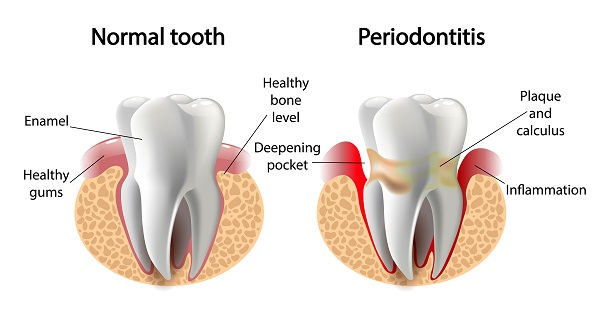 illustration of normal tooth and periodontitis tooth
