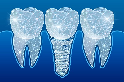 digital graphic of dental implants in polygonal wireframe