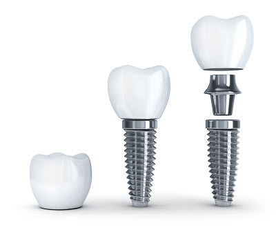 3d render of dental implants