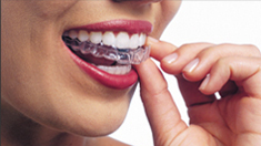 Cosmetic Orthodontia