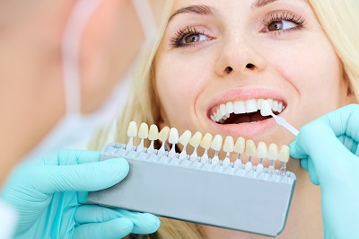 closeup of a woman choosing the right veneers