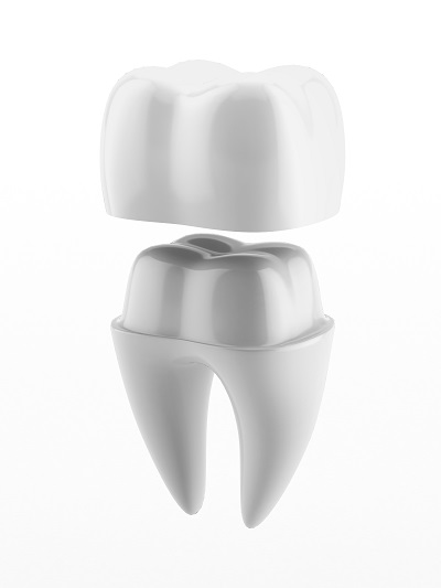illustration of dental crown and tooth