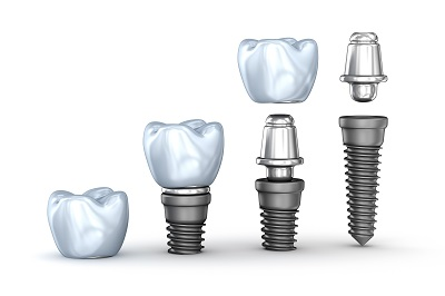 3D illustration of tooth implants set isolated on white background