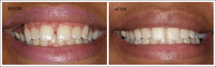 Before & After Invisalign Results - Front Teeth