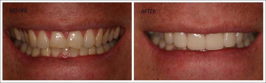 Upper Front 4 Veneers in Fort Myers