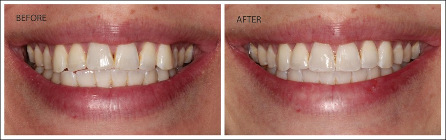 Before & After Invisalign Results - Upper Teeth