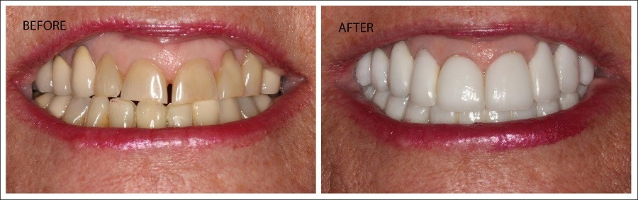 Full Mouth Restorations in Fort Myers