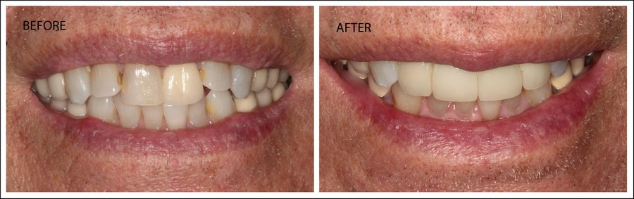 Crowns to Replace Upper Front 4 Teeth