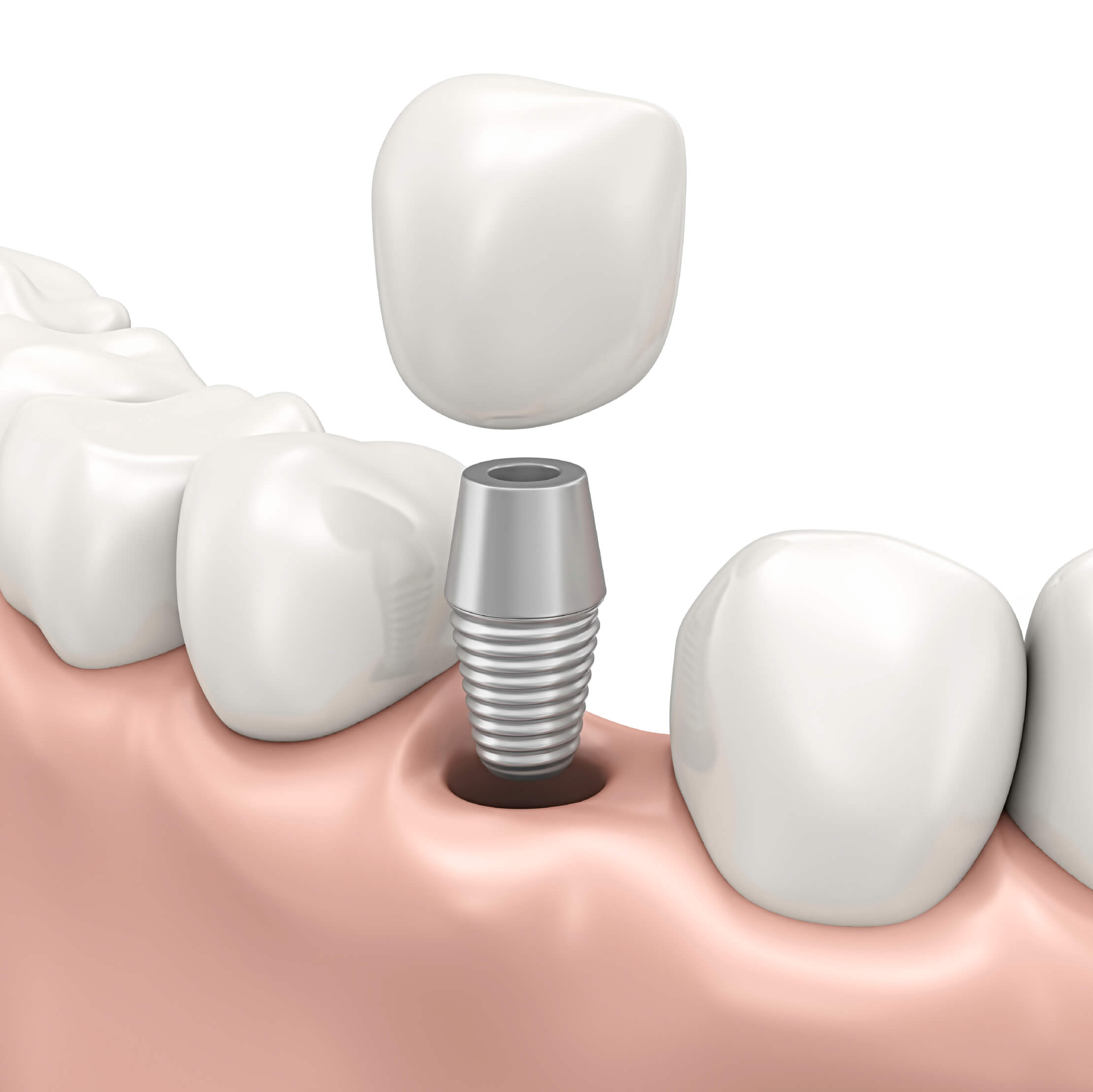 Dental implant restorations in Norfolk