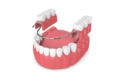 Image of partial denture in 3D