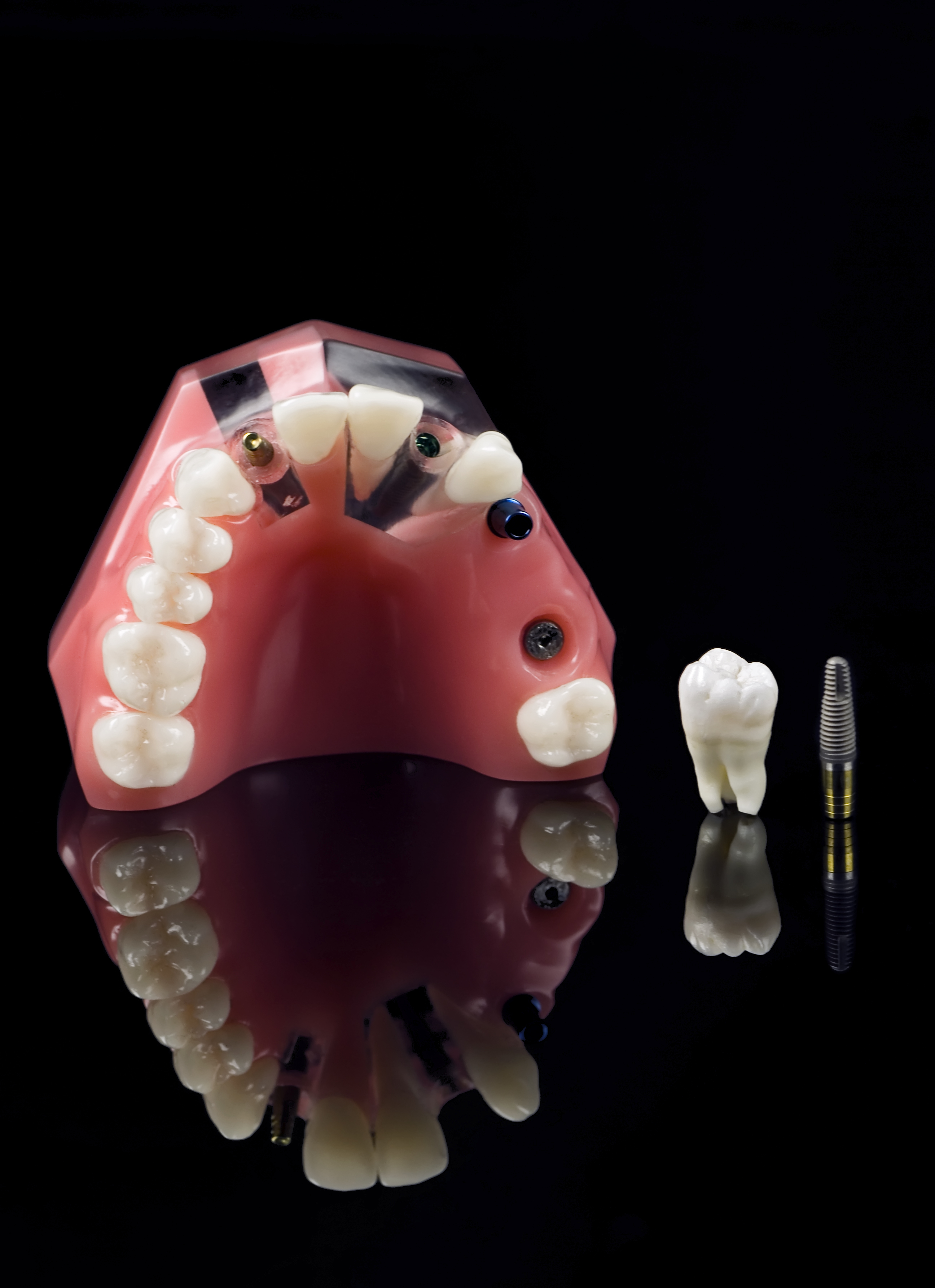 Implant Dentist in Sacremento