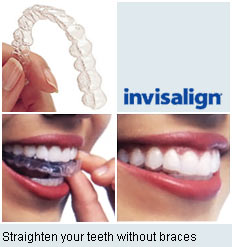 , Orthodontics / Invisalign