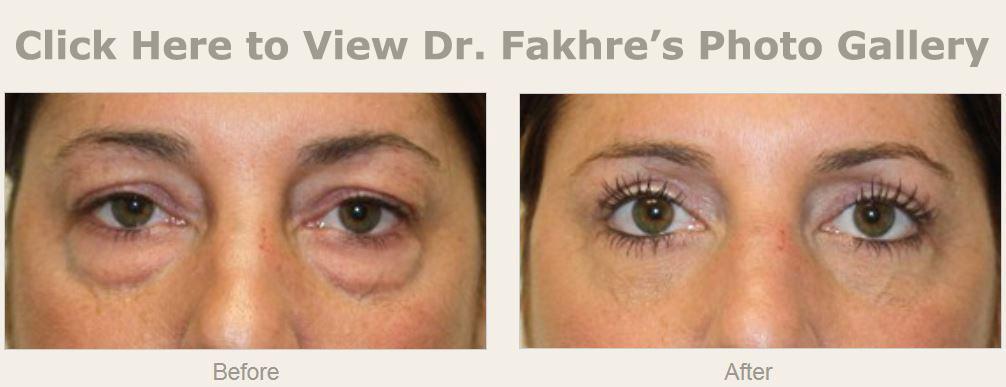 Eyelid Surgery | Wesley Chapel, FL | New Tampa Plastic Surgery