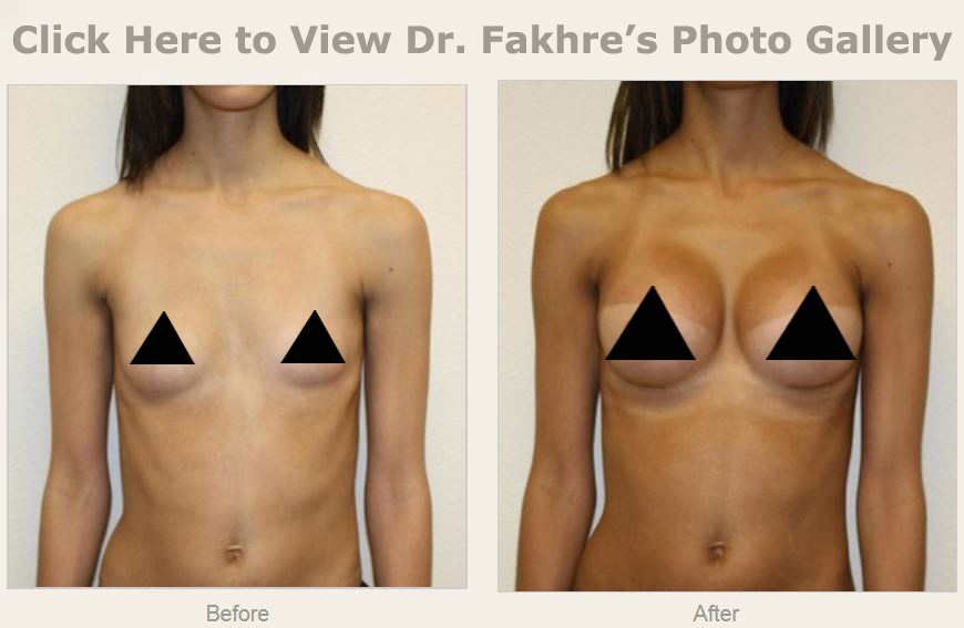 Breast Augmentation Tampa Wesley Chapel Fl New Tampa