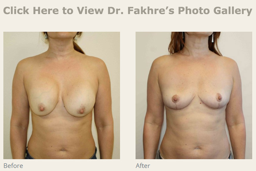 Breast Implant Removal Wesley Chapel Fl New Tampa Plastic Surgery