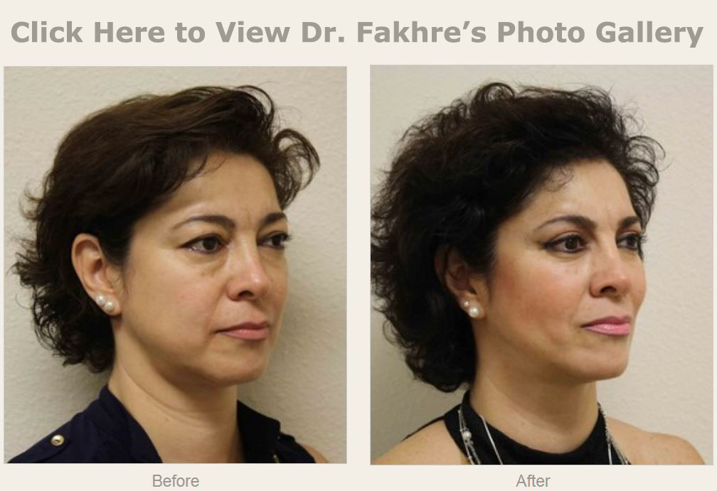 Cheek Surgery Wesley Chapel Fl New Tampa Plastic Surgery