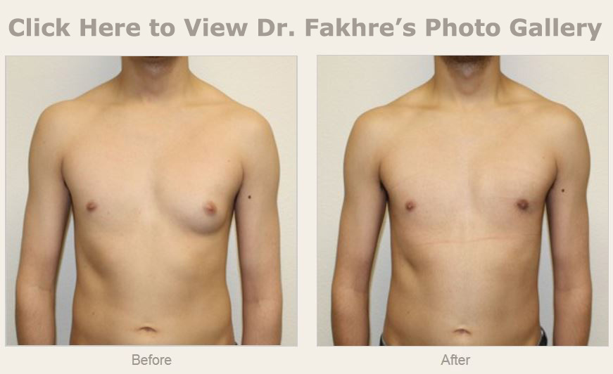 procedure breast reduction outpatient