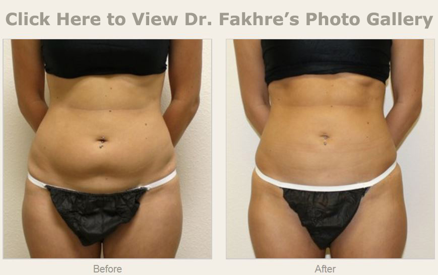 Liposuction or suction lipectomy is a cosmetic surgical procedure that  serves to remove stubborn fat deposits in various areas of the body.