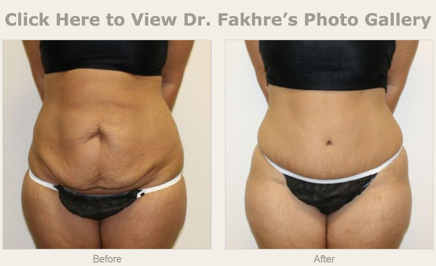 A tummy tuck or abdominoplasty is a cosmetic surgical procedure that  removes excess skin and fatty tissue from the abdomen. Previous pregnancy,  fluctuations ...