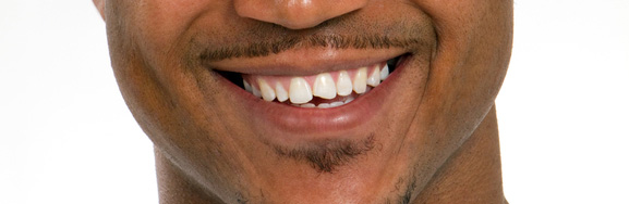 Cracked chipped tooth restoration san diego ca brighton dental cracked tooth patient solutioingenieria Gallery