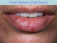get rid of cold sores quick cooking