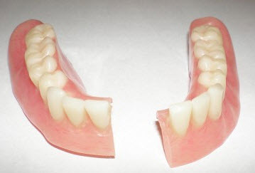 Mesa Arizona Denture Repairs
