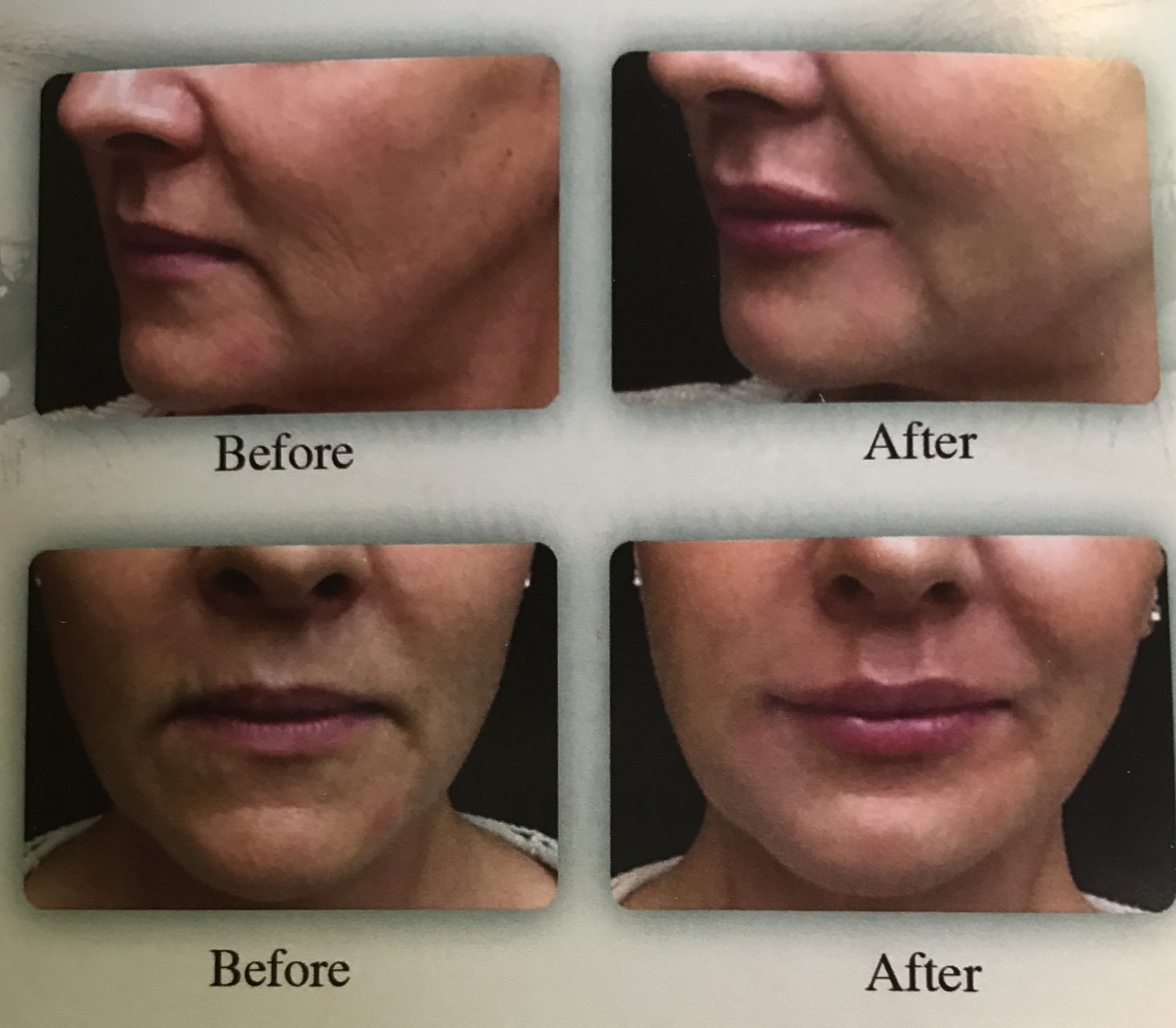 Dermal Fillers as an Esthetic Treatment   Madison, MS