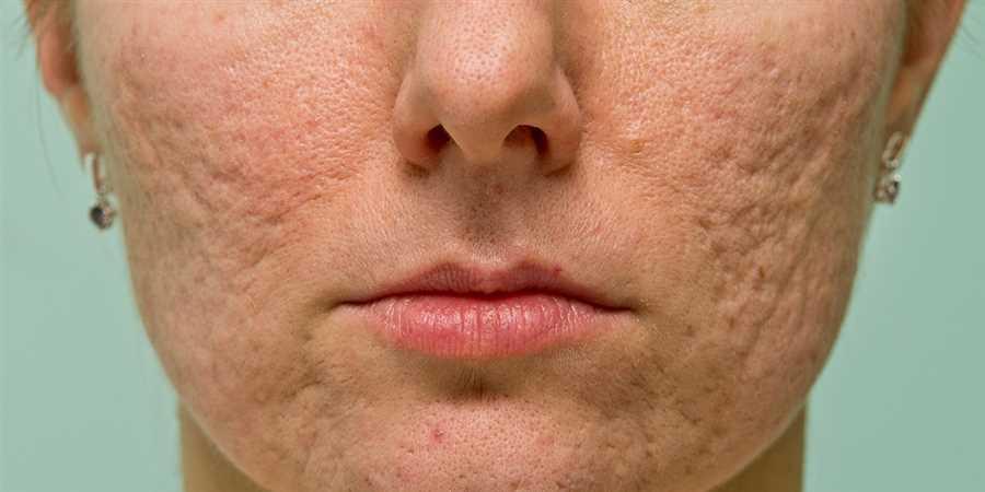 Vitalizemd Skin Care Laser Center Blog