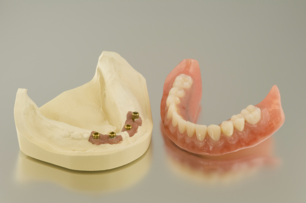 Norco Permanent Dentures