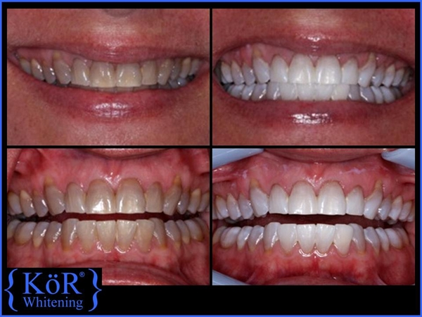 Teeth Whitening Hoover Al Hoover Family Dentistry
