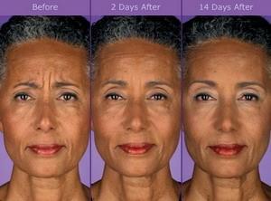 Botox: Cosmetic & Therapeutic   Tampa, FL   Geoffrey Jackson, DDS