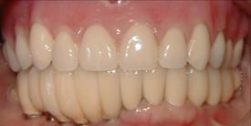 18a616cc-0d75-4203-ac3d-e1ac44dc781a_lg%5B1%5D Dental Implants