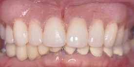 336f6cc3-9007-49dc-a82d-b52afcaad135_lg%5B1%5D Dental Implants