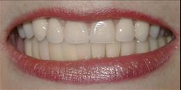 5f015e63-614f-4ac9-ae8e-ae3e81f570d7_lg%5B1%5D Dental Implants