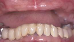 77d7ec81-628d-4003-bd93-299cbd330e0c_lg%5B1%5D Dental Implants