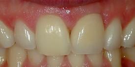 e1d1241e-f416-4331-82fc-ecc94c673214_lg%5B1%5D Dental Implants